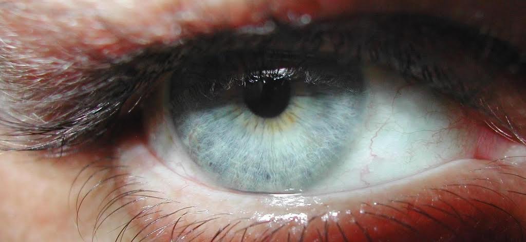 Cum sa-ti ingrijesti lentilele de contact astfel incat sa nu-ti afecteze sanatatea ochilor